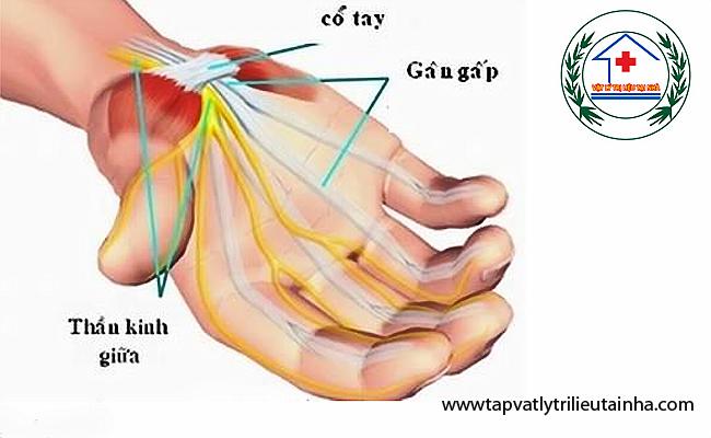 Phục hồi chức năng đứt gân gấp bàn tay – Sự dính gân sau phẫu thuật