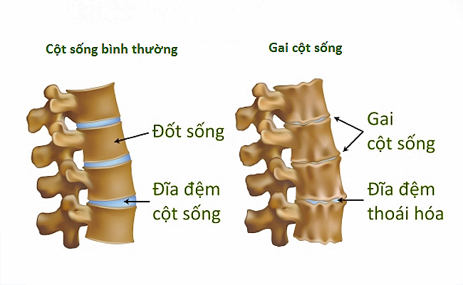 nguyen nhan gai cot song that lung